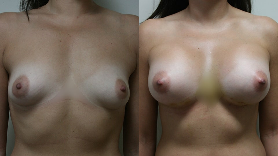 Case 9521 Younique Before & After Breast Augmentation