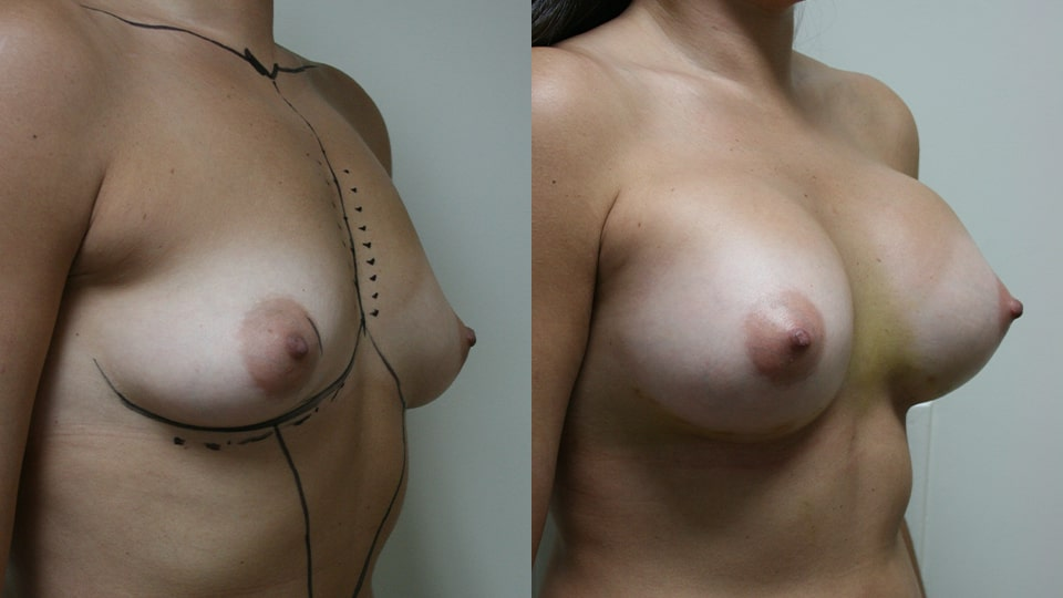 Case 9521 Younique Before & After Breast Augmentation Side